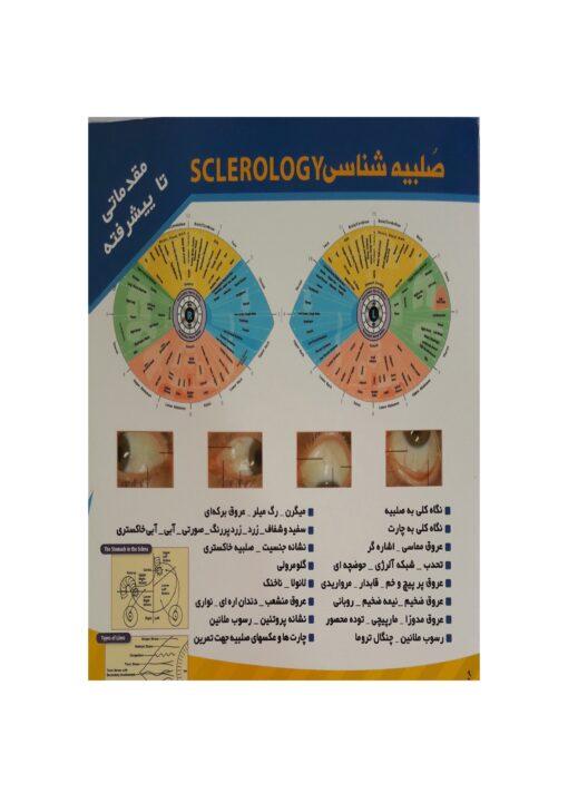 آموزش تصویری تشخیص بیماری از طریق صلبیه